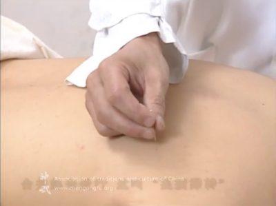 Иглоукалывание, Основы китайской традиционной медицины, медицина, китайская медицина