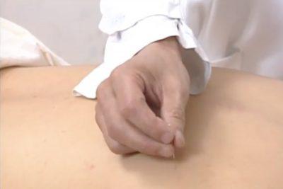 Иглоукалывание, китайская медицина