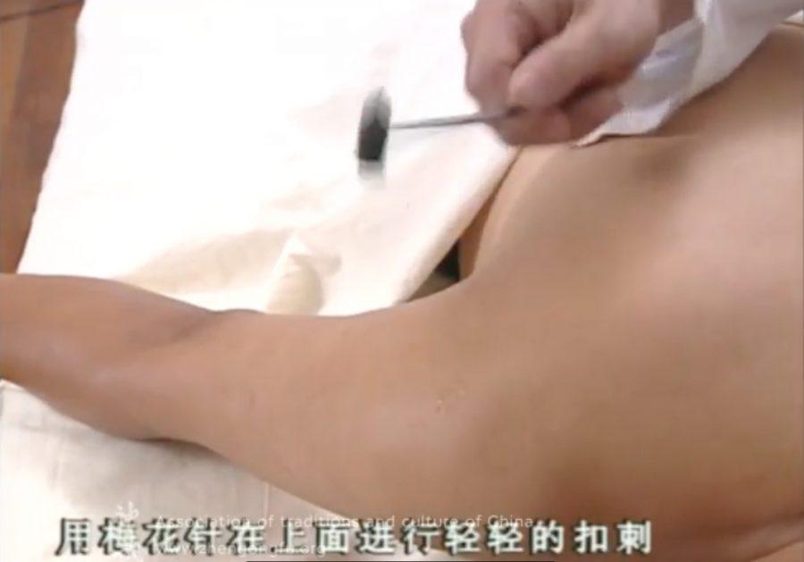 Иглоукалывание, Способы иглоукалывания, медицина, китайская медицина